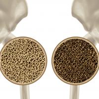 可吸收鈣鹽骨洞填充裝置臨床前測試基準