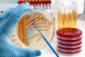 細菌糞腸球菌檢驗